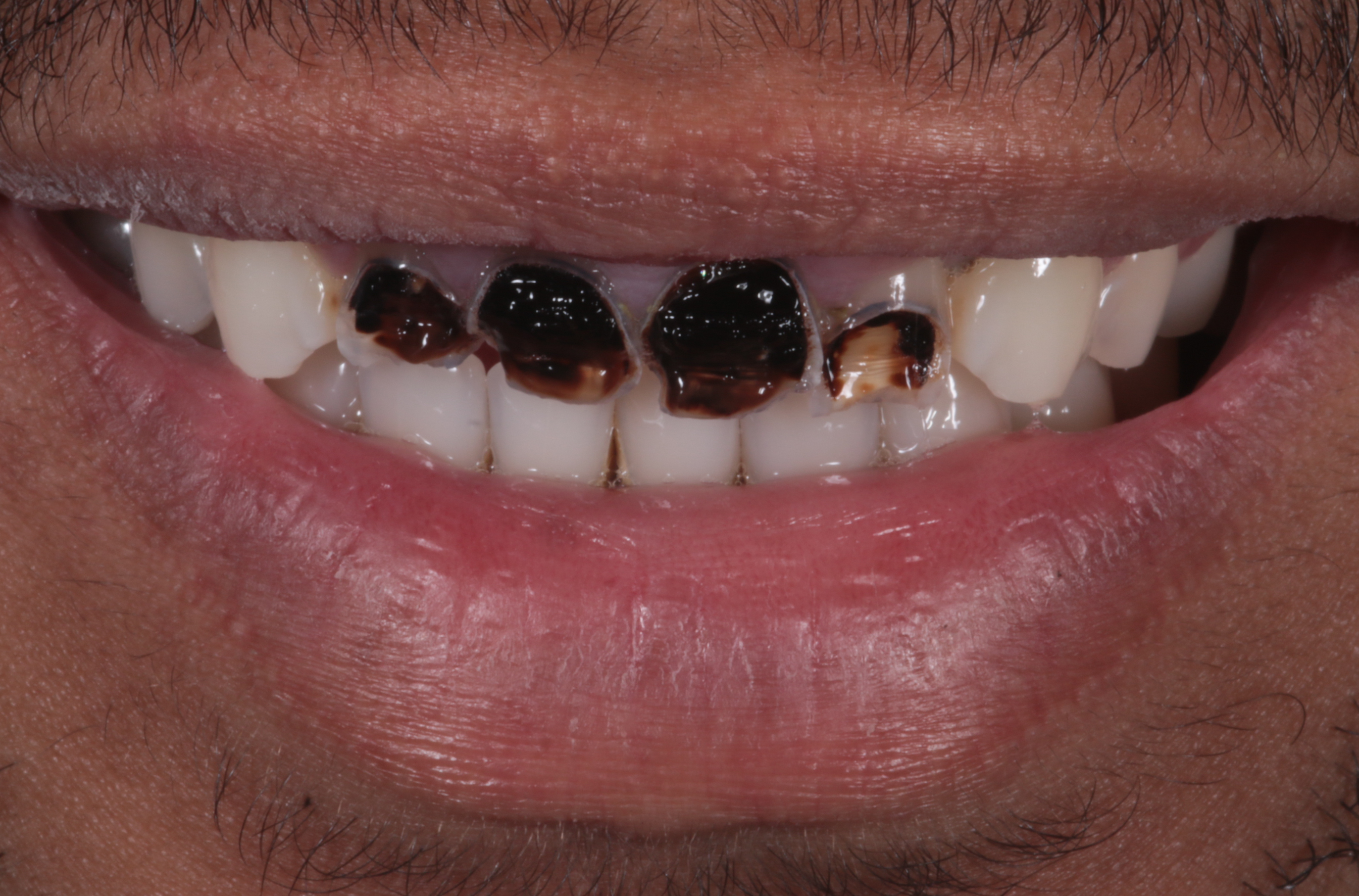 Personalization of prefabricated facets for aesthetic smile rehab – Brilliant NG Componeer